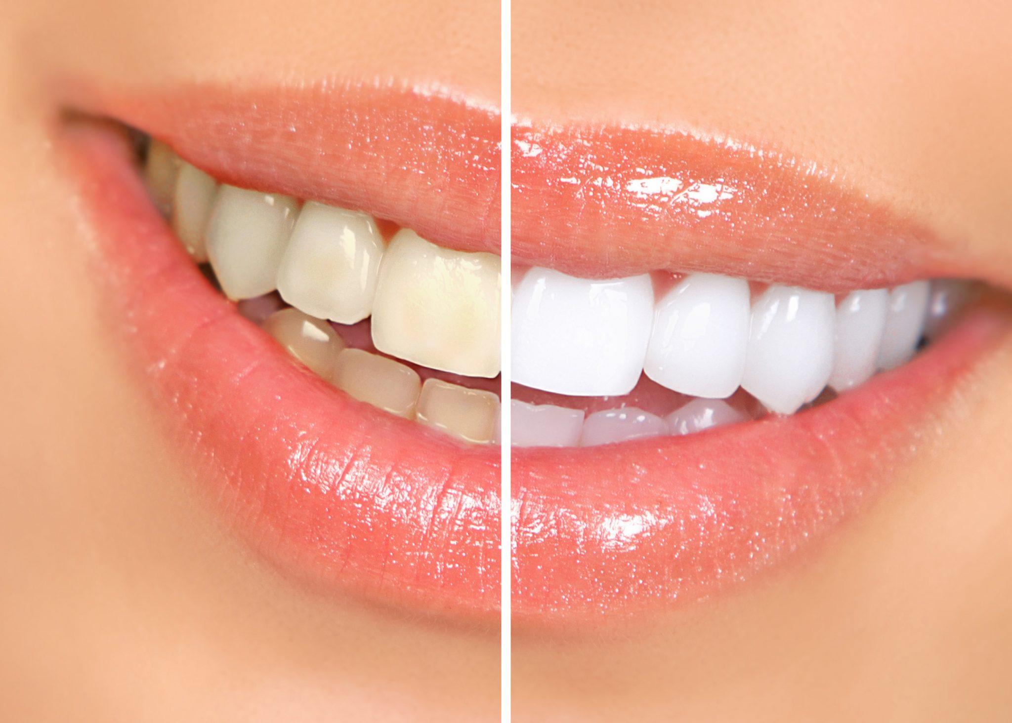 Dentist Kelowna   Dr. Sandy Crocker, Dr. Peter Mitchell  