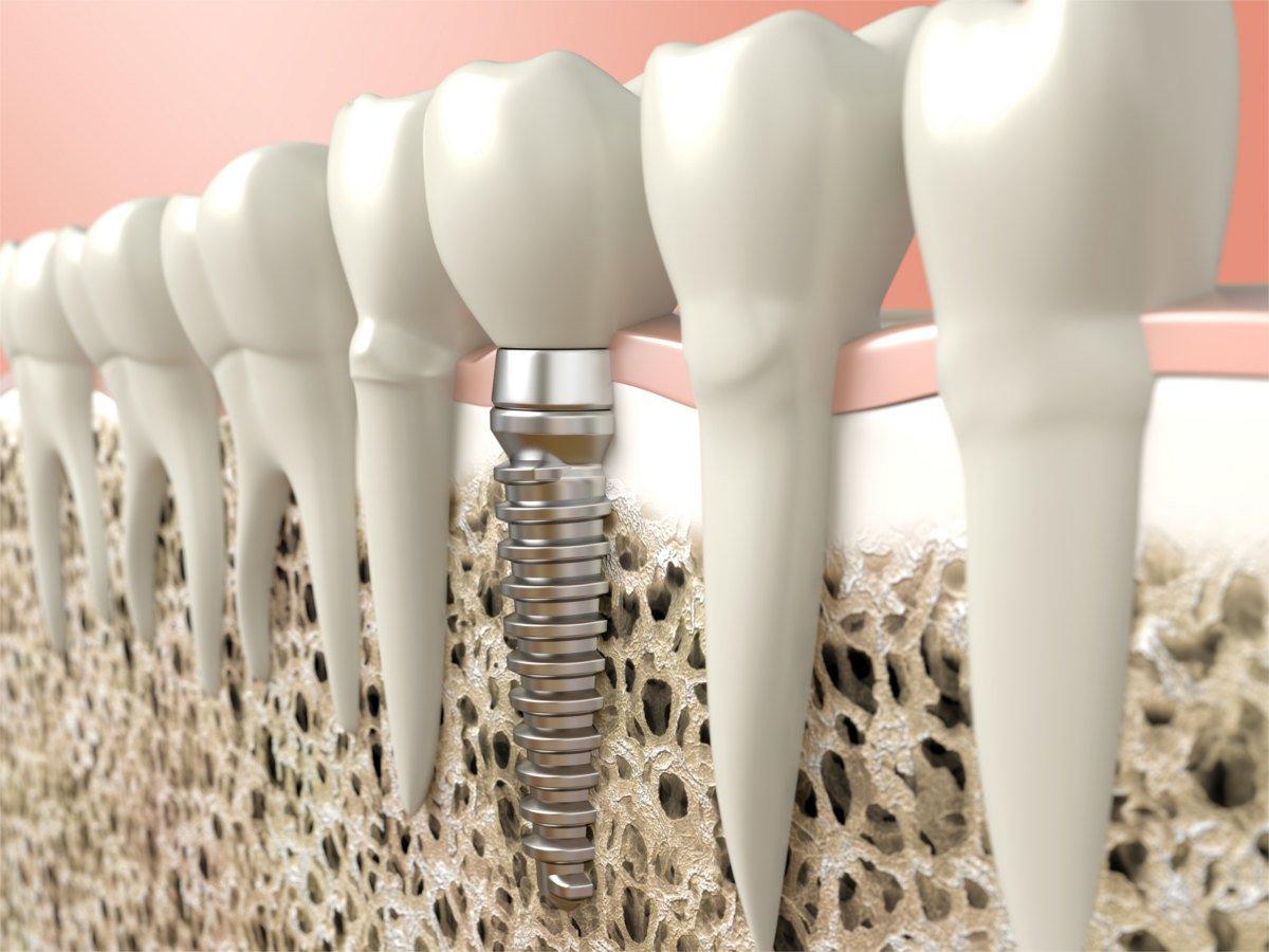 Dental Implants | Kelowna Dentist, Dr. Sandy Crocker