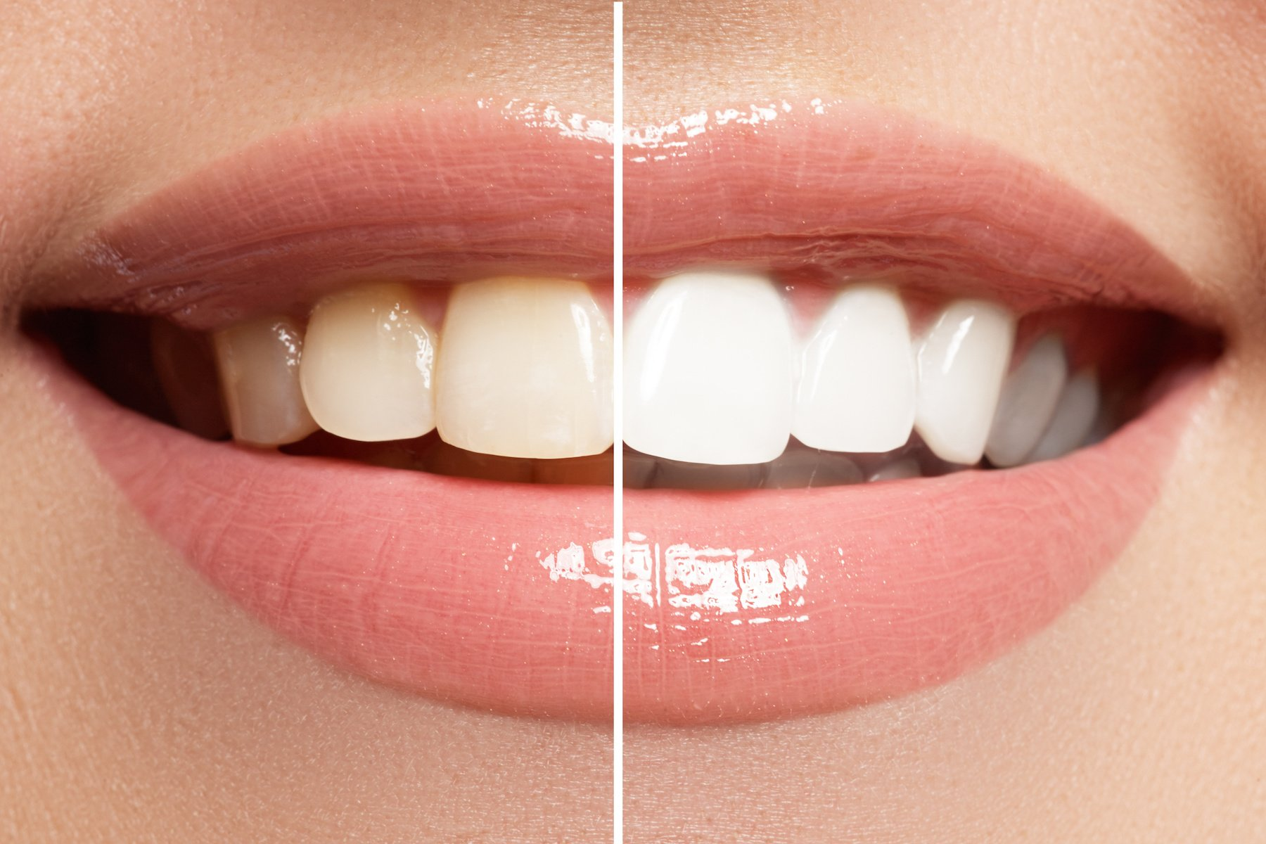 cosmetic dentistry whitening teeth dentist clinic tooth crown veneers kelowna dr sandy dr peter mitchell