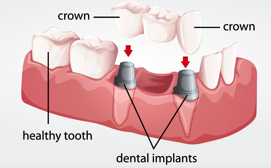 Kelowna dental crown restorations dr sandy dr peter mitchell dentistry dental crown implants teeth oral health care dentist dr sandy dr mitchell kelowna ccuart Image collections